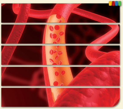 Module 8—Vascular Access: A Lifeline for Dialysis